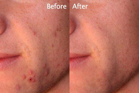 How to Fix Spots with Blemish Removal Tool