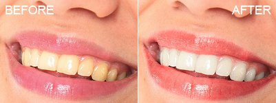 Whiten Teeth & Retouch Lips